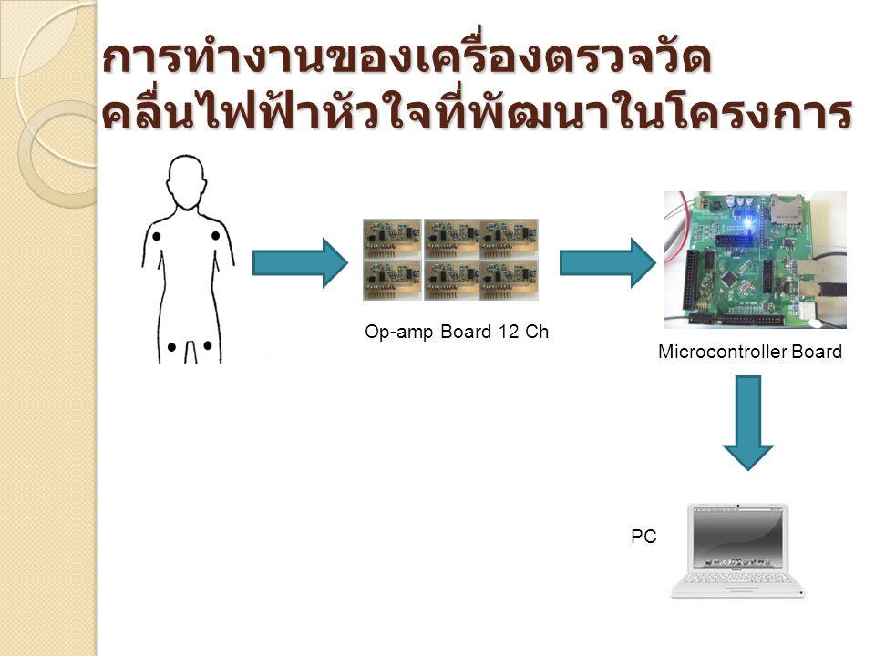 การทำงานของเครื่องตรวจวัดคลื่นไฟฟ้าหัวใจที่พัฒนาในโครงการ
