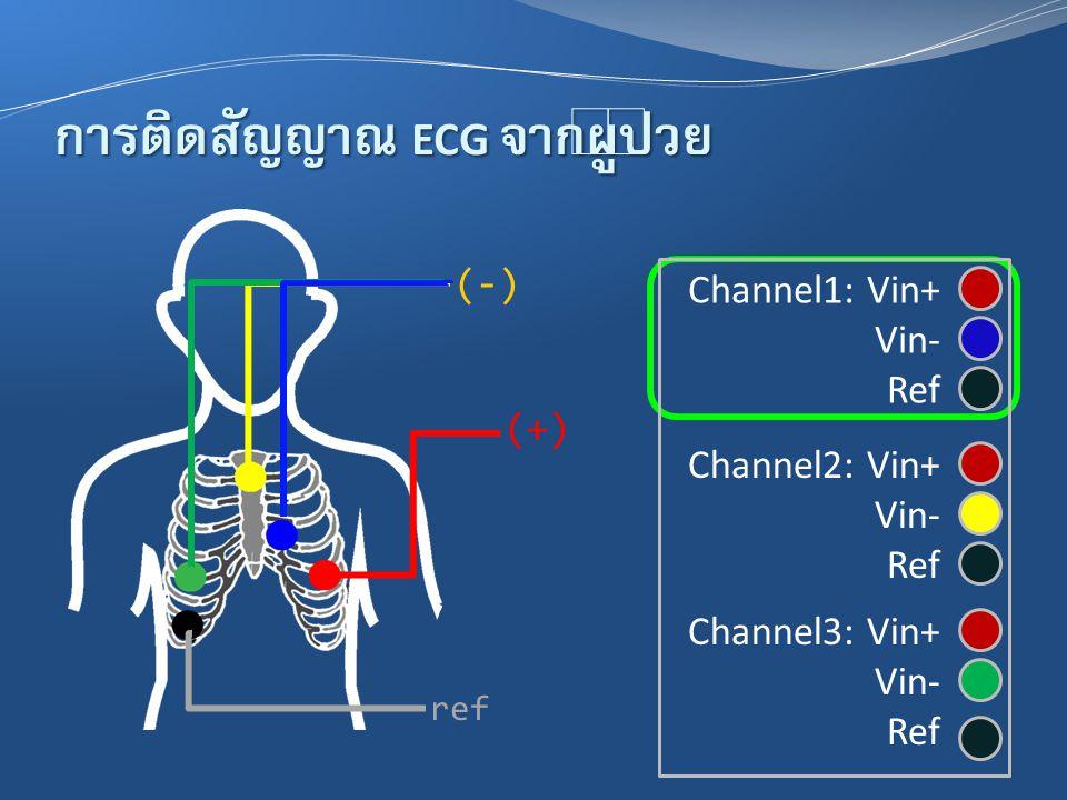 การติดสัญญาณ ECG จากผู้ป่วย