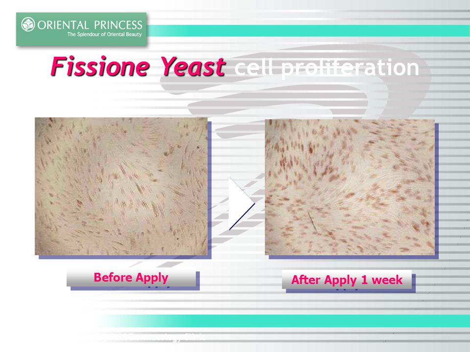 Fissione Yeast cell proliferation