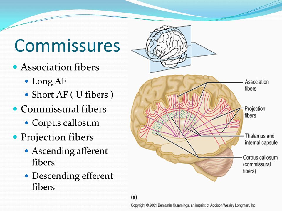 Commissures Association fibers Commissural fibers Projection fibers