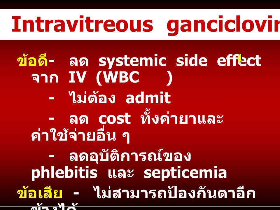Intravitreous ganciclovir