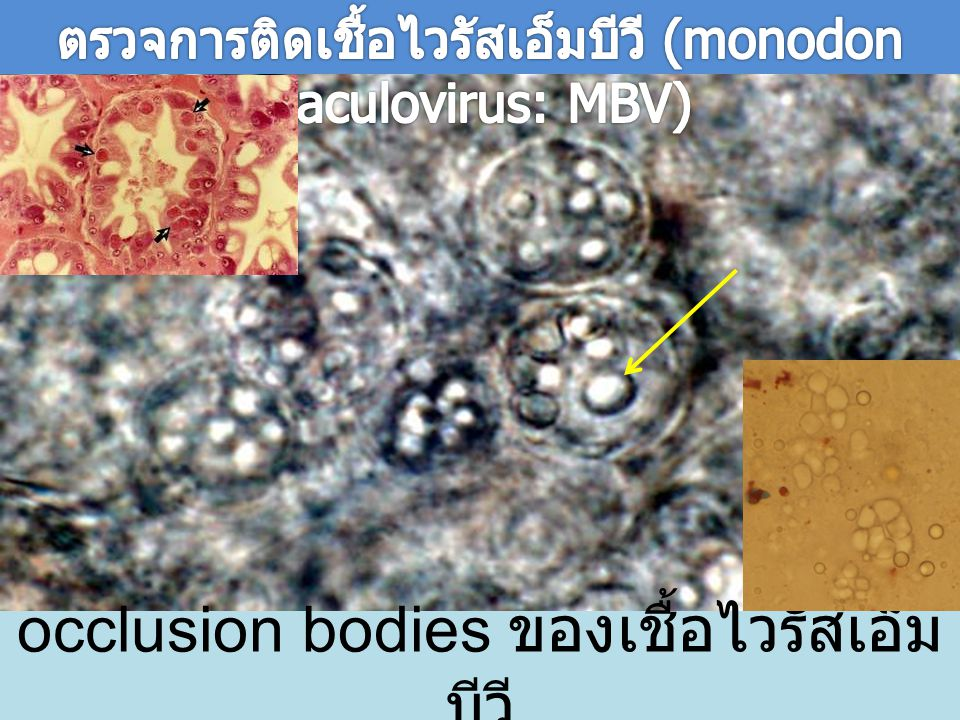 occlusion bodies ของเชื้อไวรัสเอ็มบีวี
