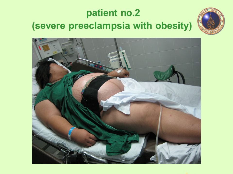 (severe preeclampsia with obesity)