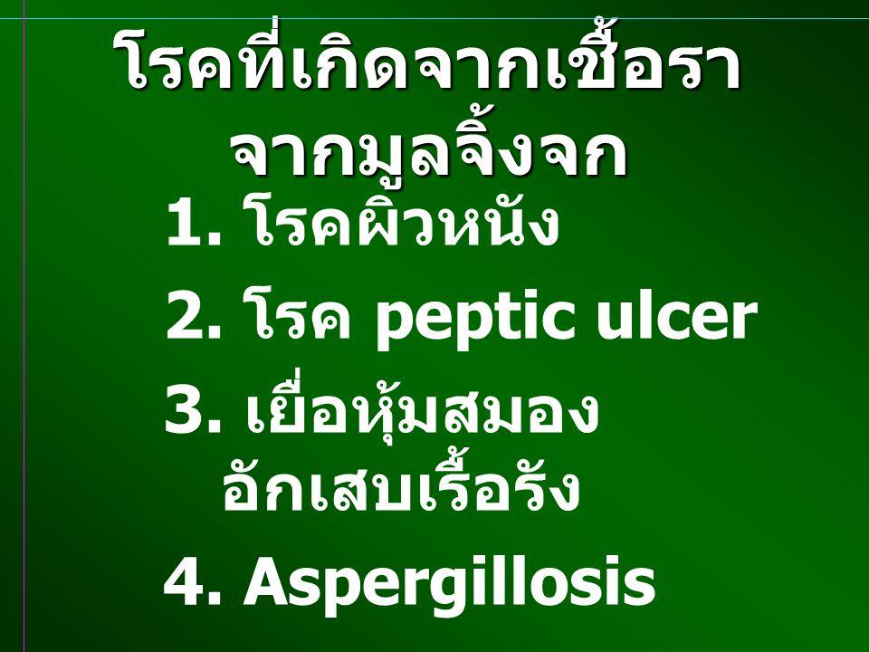 โรคที่เกิดจากเชื้อราจากมูลจิ้งจก