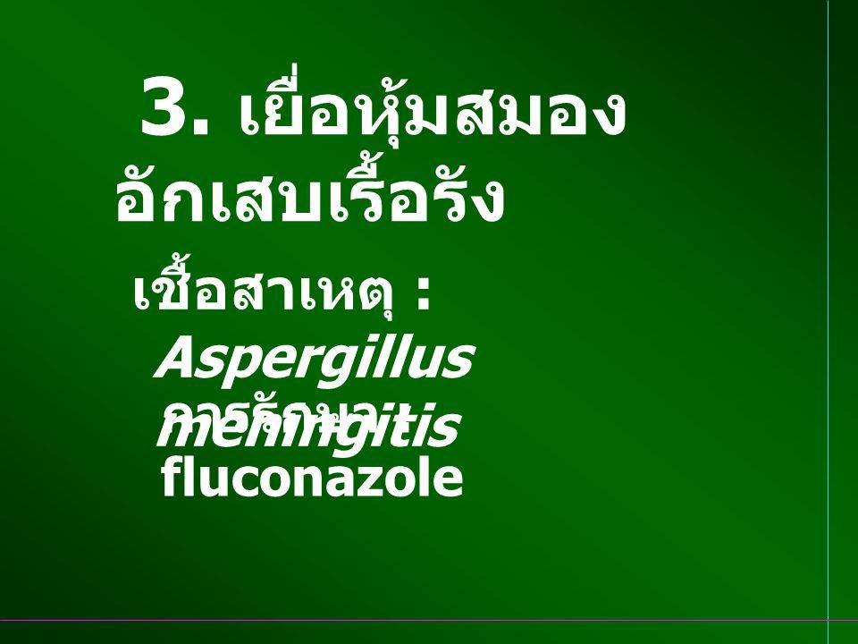 3. เยื่อหุ้มสมองอักเสบเรื้อรัง