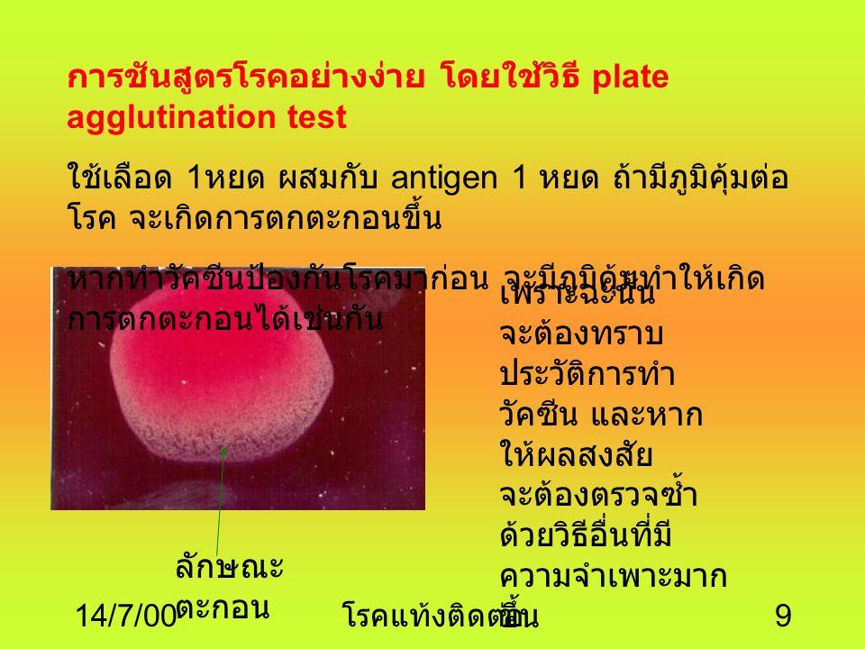 การชันสูตรโรคอย่างง่าย โดยใช้วิธี plate agglutination test