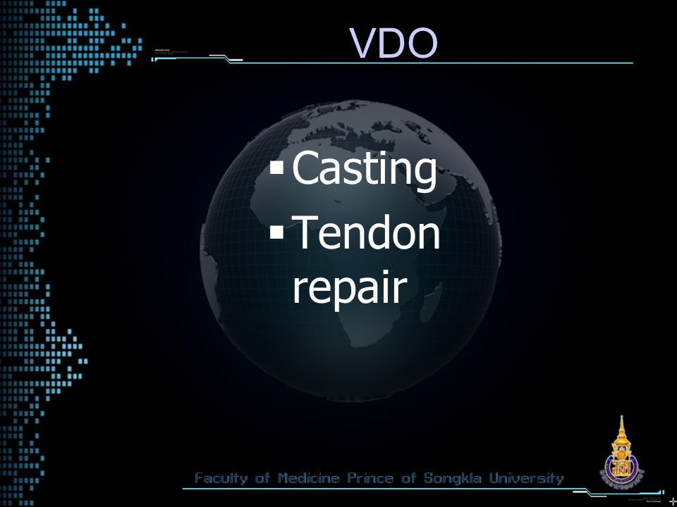 VDO Casting Tendon repair