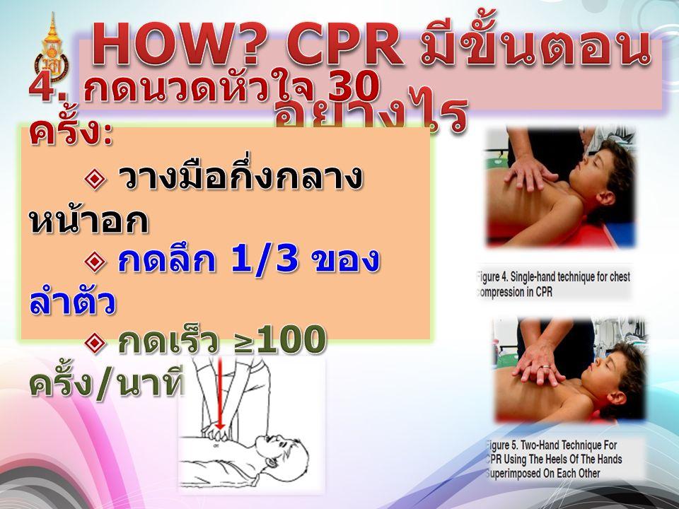HOW CPR มีขั้นตอนอย่างไร