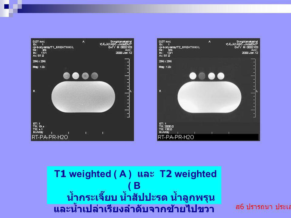 T1 weighted ( A ) และ T2 weighted ( B