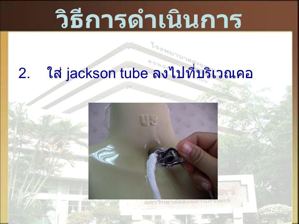 วิธีการดำเนินการ 2. ใส่ jackson tube ลงไปที่บริเวณคอ