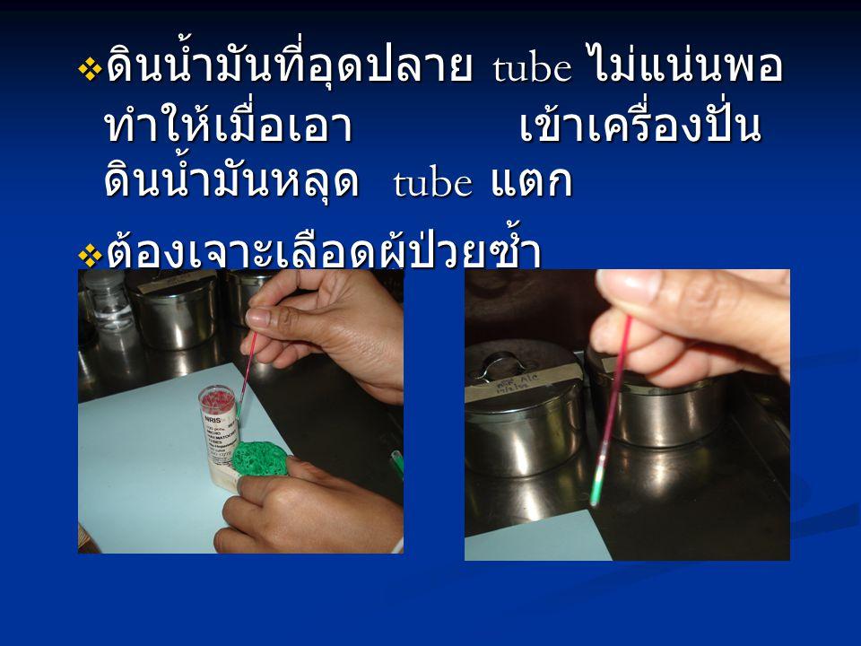 ดินน้ำมันที่อุดปลาย tube ไม่แน่นพอทำให้เมื่อเอา เข้าเครื่องปั่นดินน้ำมันหลุด tube แตก