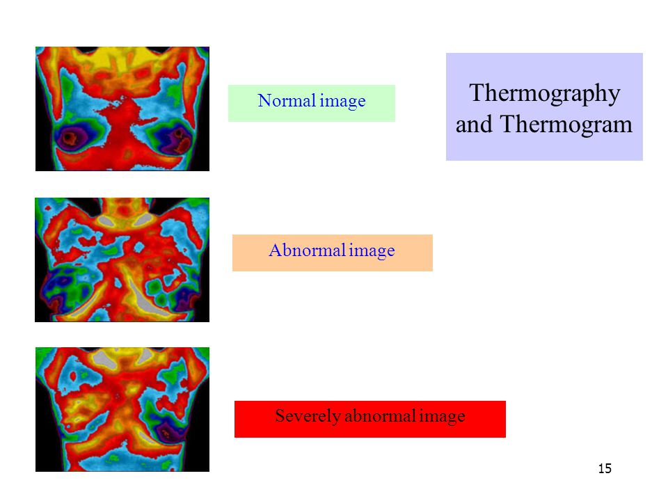 Thermography and Thermogram
