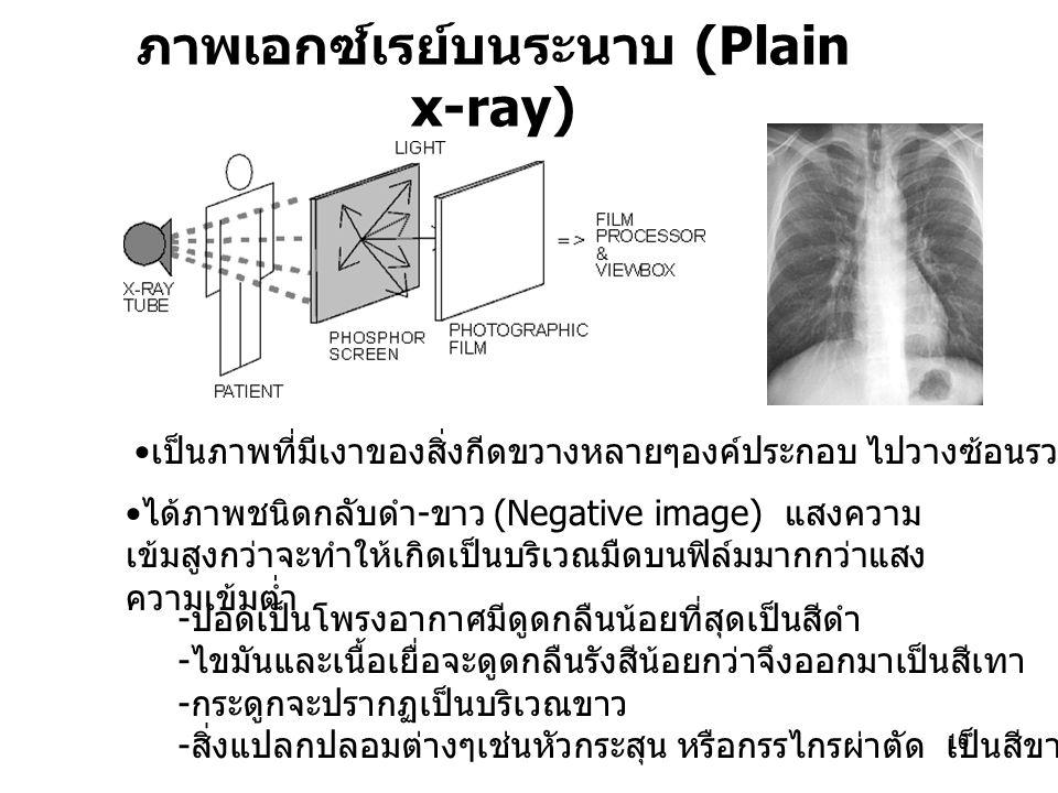 ภาพเอกซ์เรย์บนระนาบ (Plain x-ray)