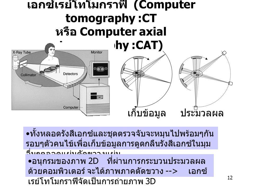 เอกซ์เรย์โทโมกราฟี (Computer tomography :CT หรือ Computer axial tomography :CAT)