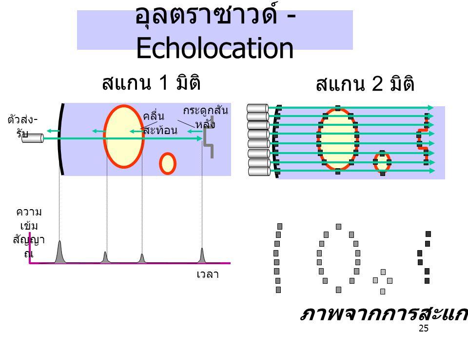 อุลตราซาวด์ -Echolocation
