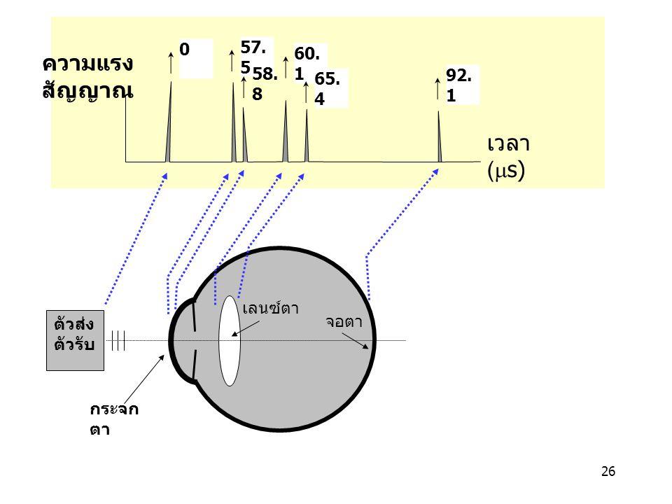 ความแรง สัญญาณ เวลา (ms) 57.5 60.1 58.8 92.1 65.4 เลนซ์ตา จอตา ตัวส่ง
