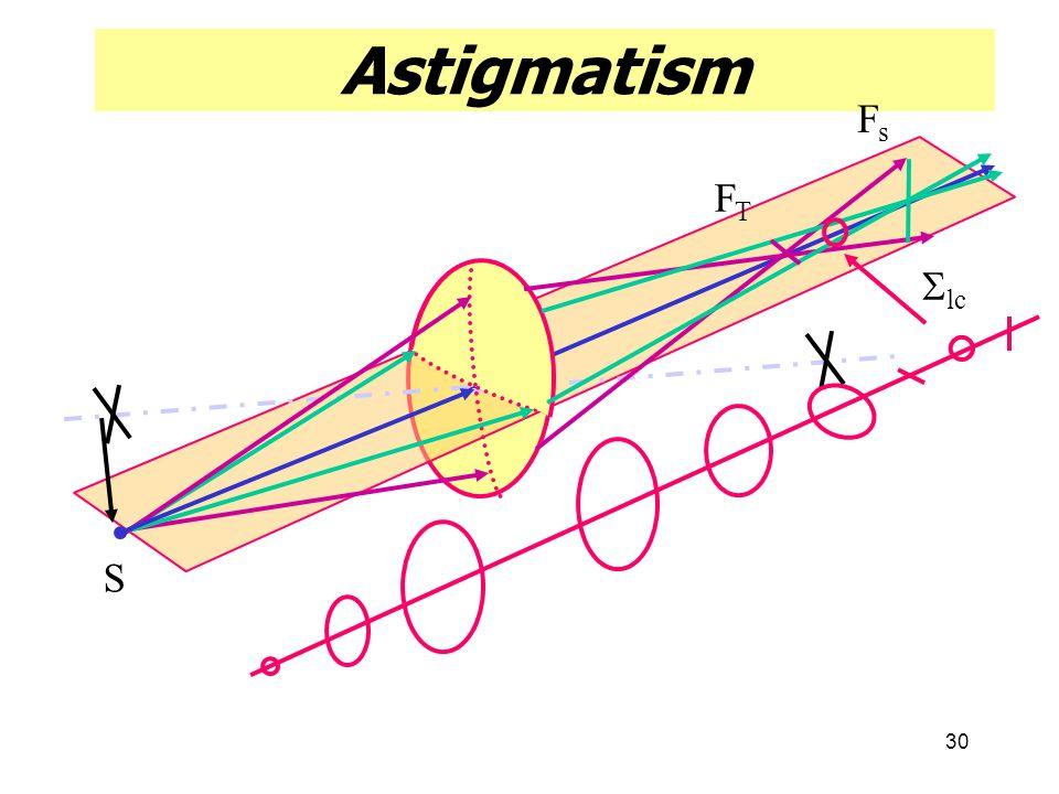 Astigmatism Fs FT Slc S