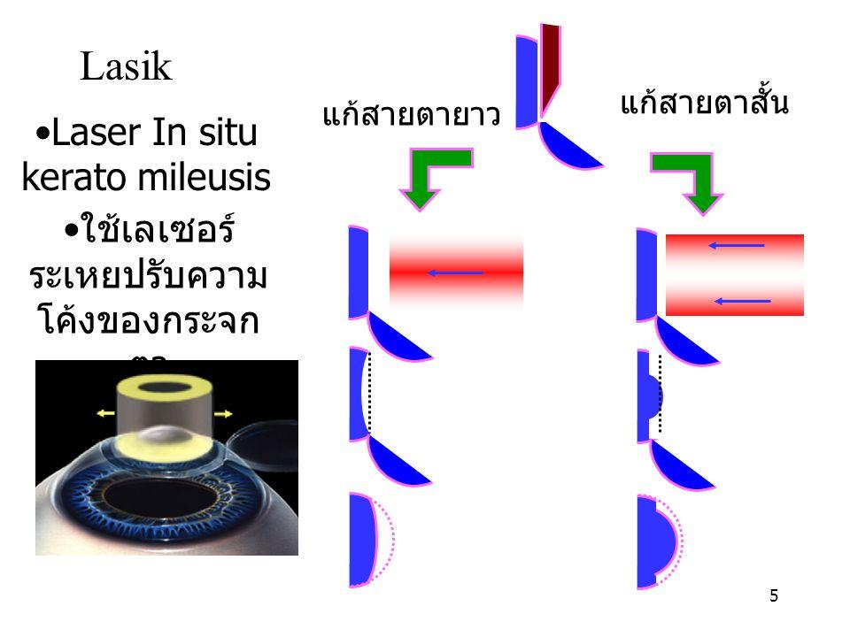 Lasik Laser In situ kerato mileusis