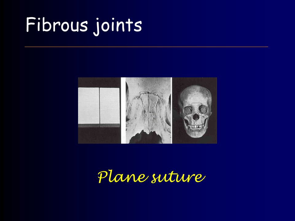 Fibrous joints Plane suture