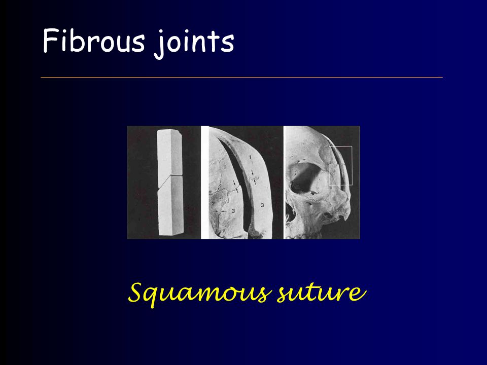 Fibrous joints Squamous suture