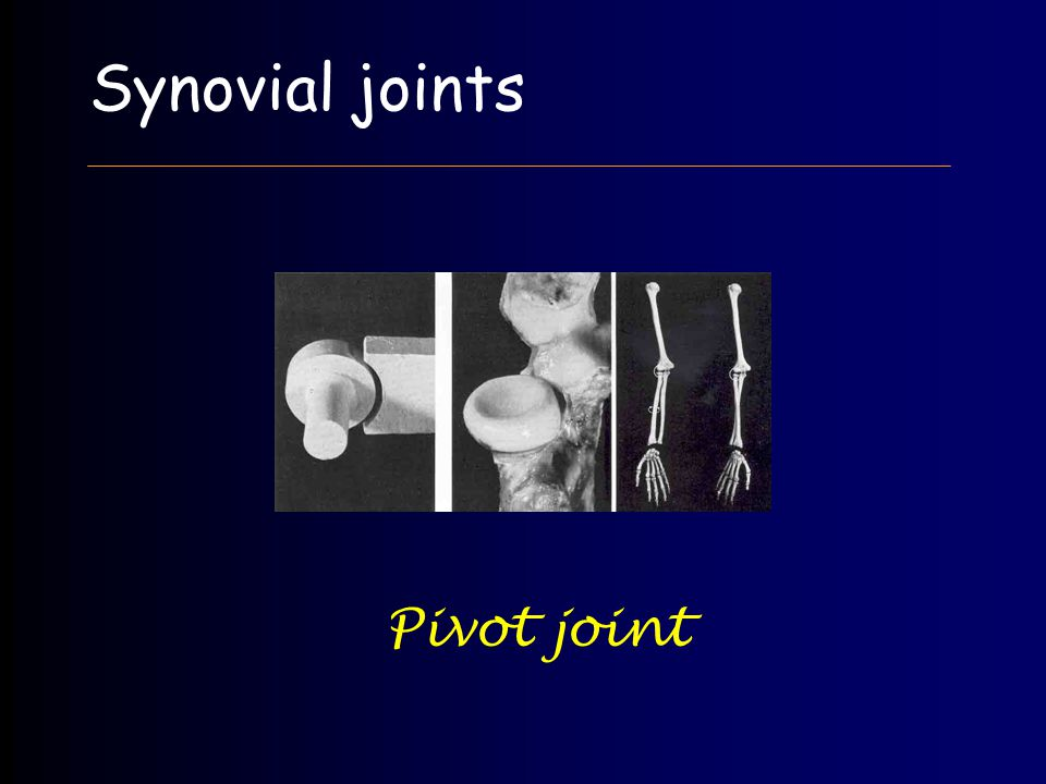 Synovial joints Pivot joint
