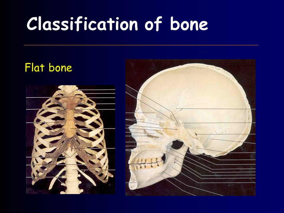 Classification of bone