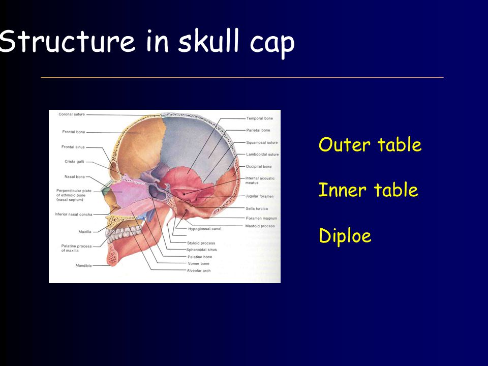 Structure in skull cap Outer table Inner table Diploe