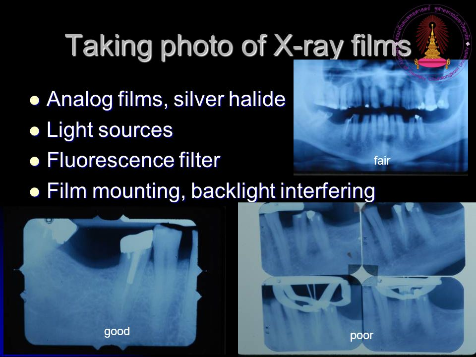 Taking photo of X-ray films