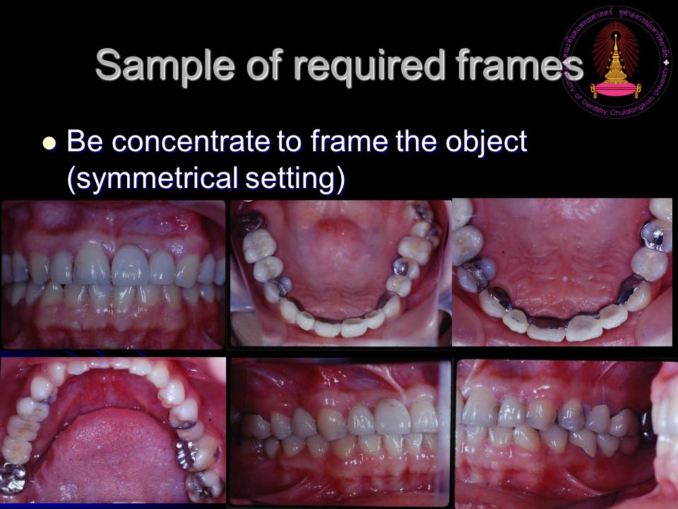 Sample of required frames