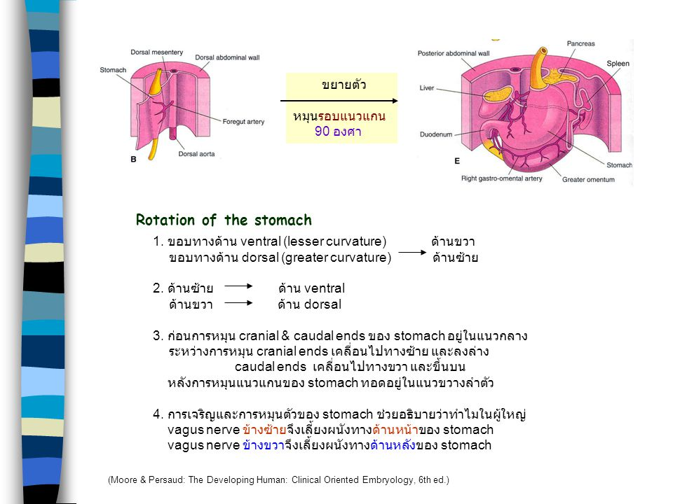 Rotation of the stomach