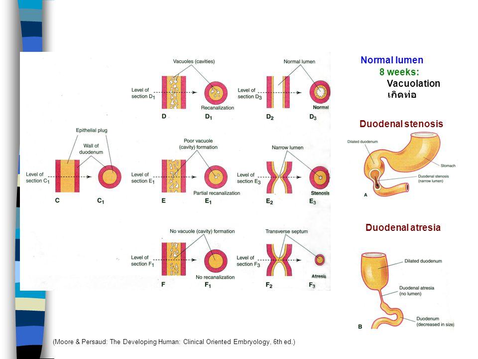 Normal lumen 8 weeks: Vacuolation เกิดท่อ Duodenal stenosis