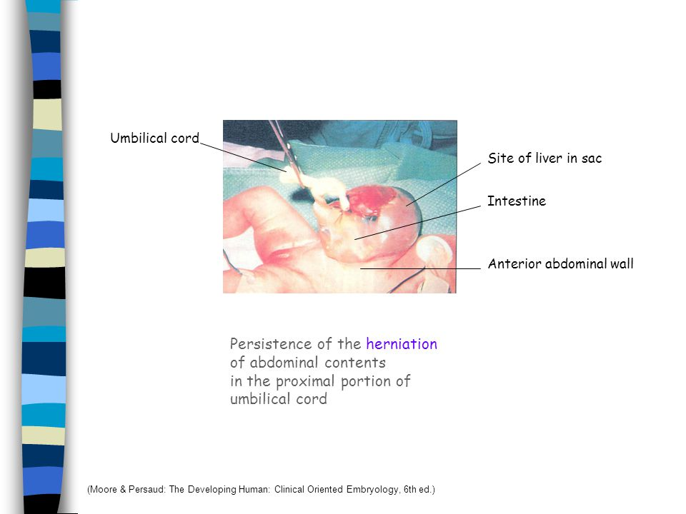 Persistence of the herniation of abdominal contents