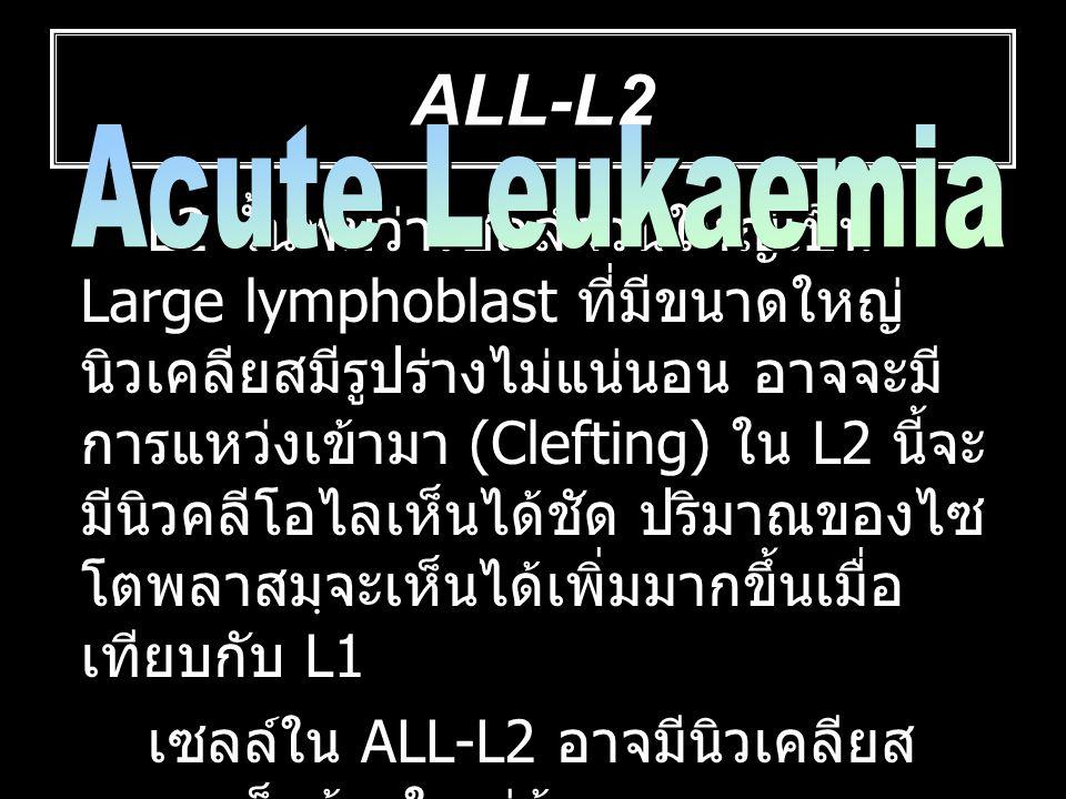 ALL-L2 ALL-L2. Acute Leukaemia.