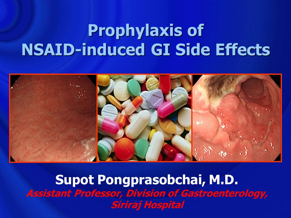 Prophylaxis of NSAID-induced GI Side Effects