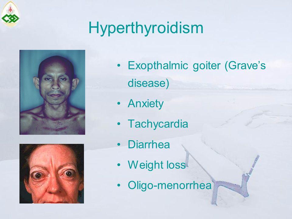 Hyperthyroidism Exopthalmic goiter (Grave's disease) Anxiety