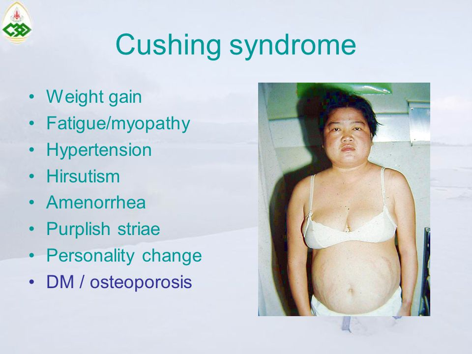 Cushing syndrome Weight gain Fatigue/myopathy Hypertension Hirsutism