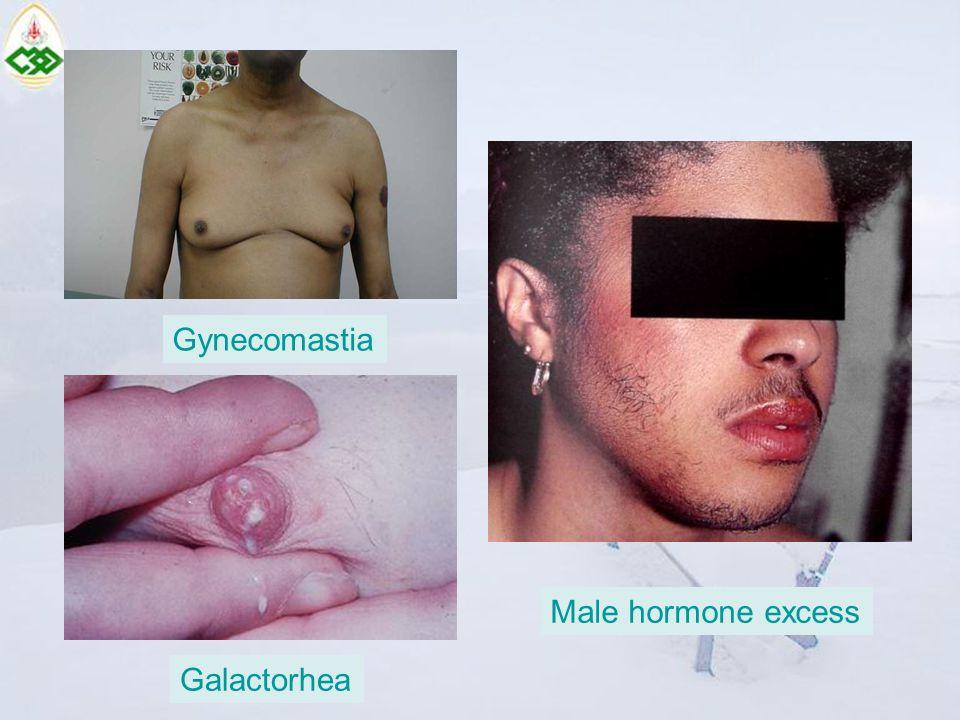 Gynecomastia Male hormone excess Galactorhea