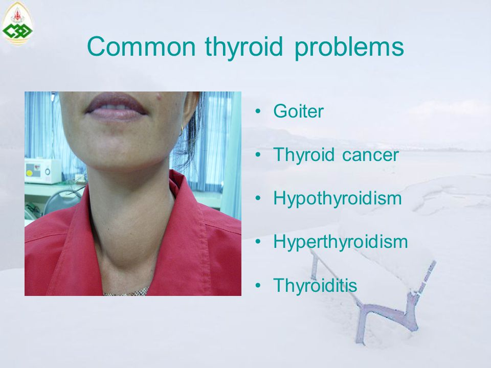 Common thyroid problems