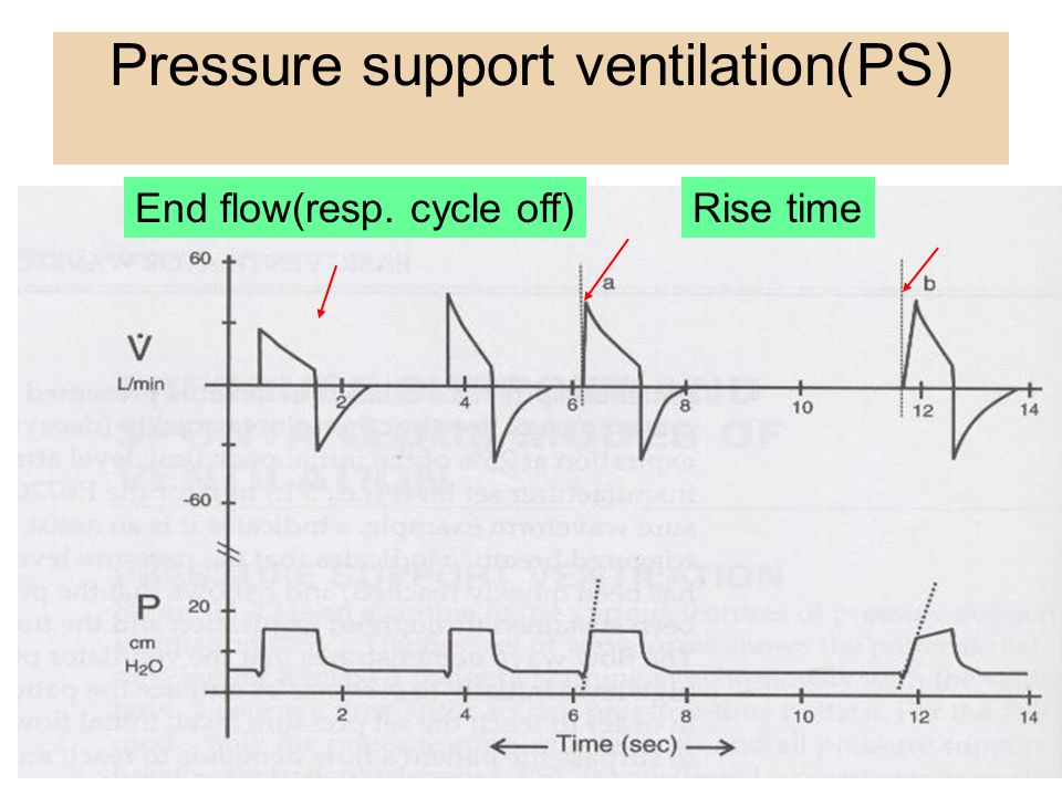 Pressure support ventilation(PS)