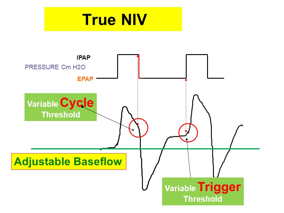 True NIV Adjustable Baseflow Variable Cycle Threshold Variable Trigger