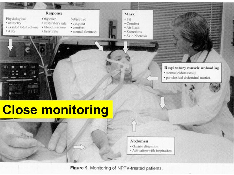 Close monitoring