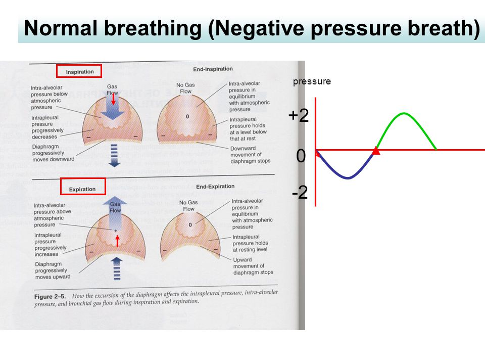 Normal breathing (Negative pressure breath)