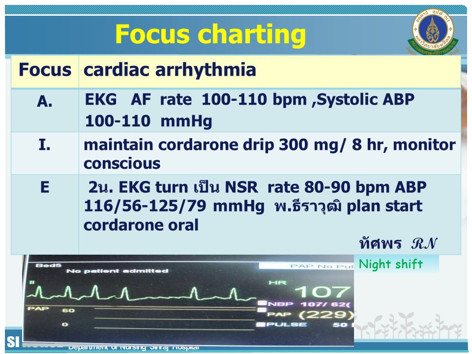 Focus charting Focus cardiac arrhythmia A.