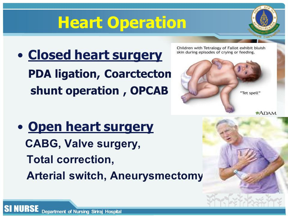 Heart Operation Closed heart surgery PDA ligation, Coarctectomy,