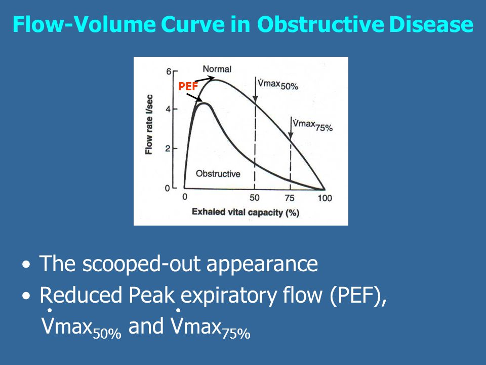 Flow-Volume Curve in Obstructive Disease