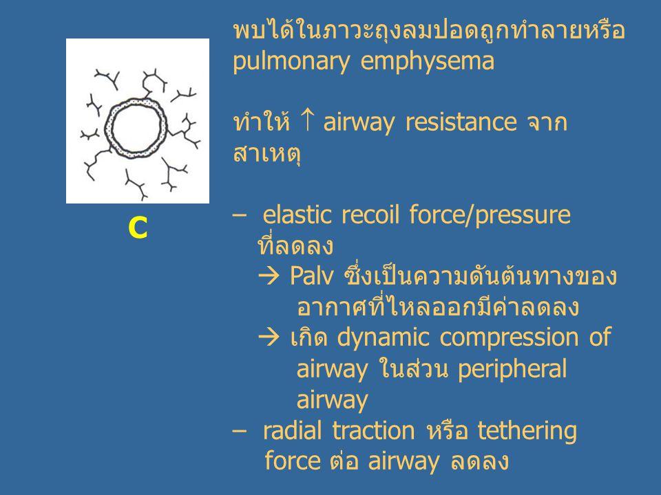 C พบได้ในภาวะถุงลมปอดถูกทำลายหรือ pulmonary emphysema