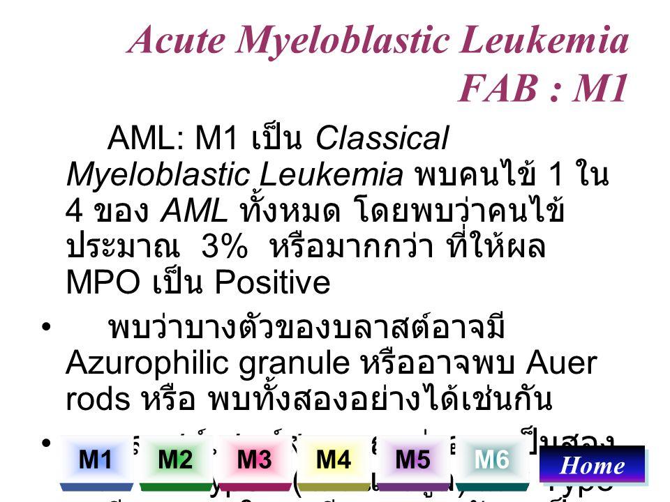 Acute Myeloblastic Leukemia FAB : M1