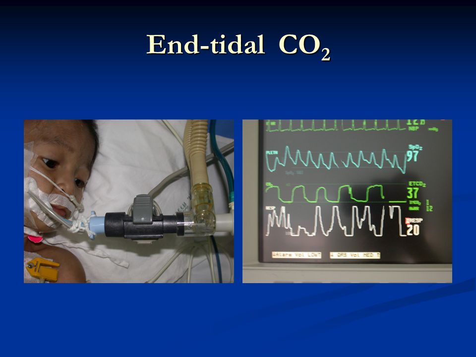 End-tidal CO2