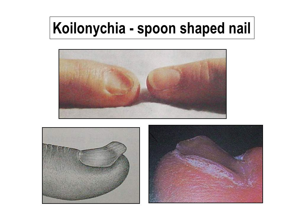 Koilonychia - spoon shaped nail