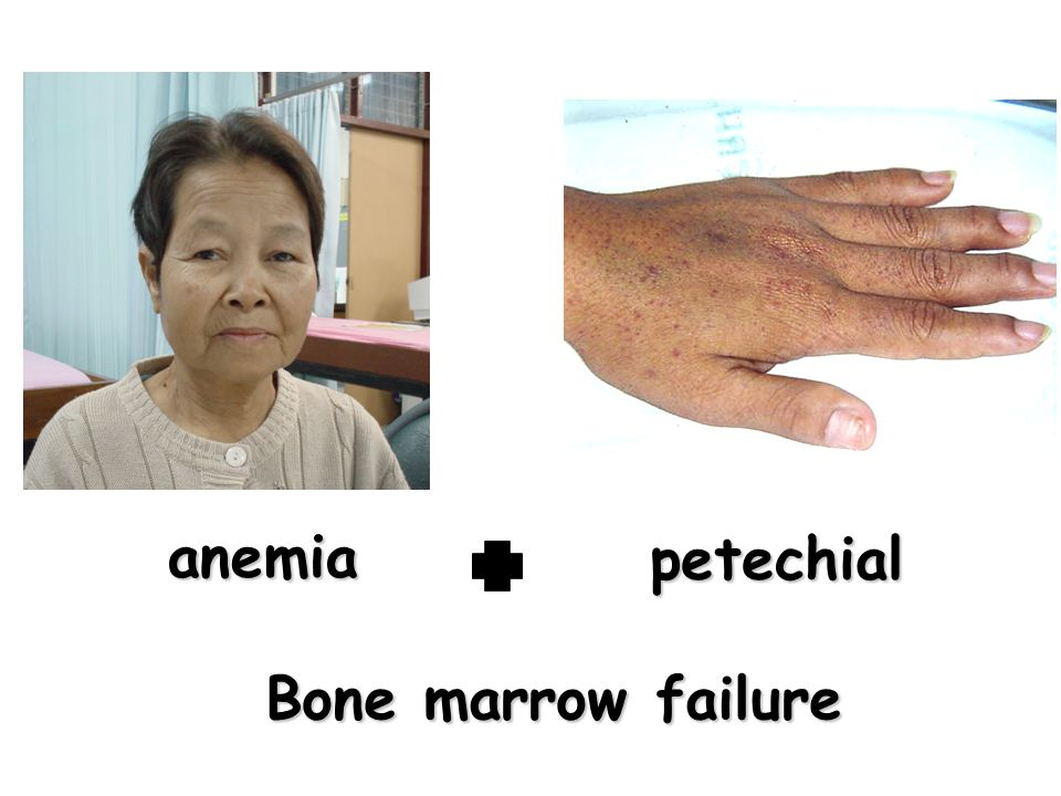 anemia petechial Bone marrow failure